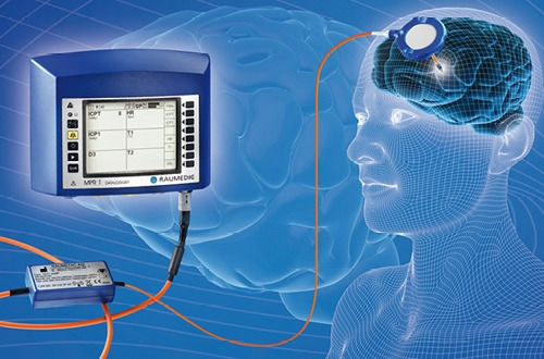 Manufacturer of brain pressure sensors
